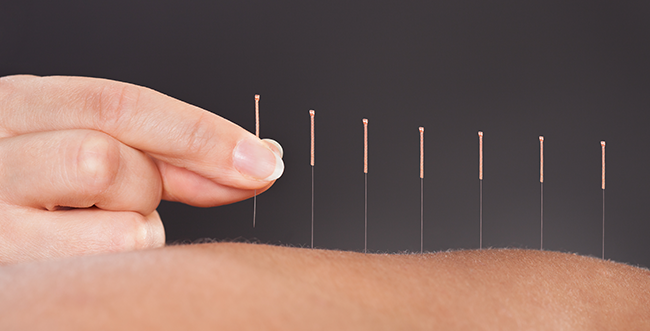Can acupuncture cure anxiety?